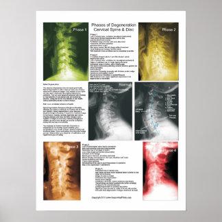 Affiche spinale cervicale de dégénérescence de