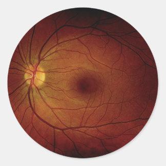 Autocollant de nerf optique