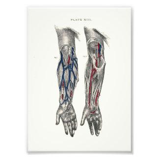 Bras d'impression d'anatomie de 1895 humains photos sur toile