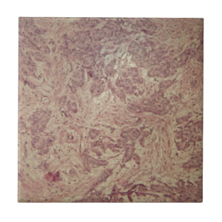 Cancer du sein sous le microscope carreau