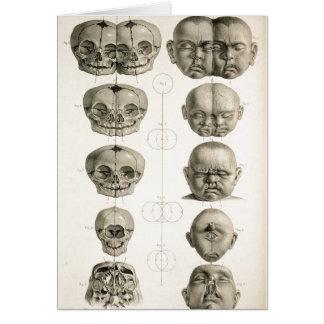 Carte Les défauts de forme infantiles de crâne