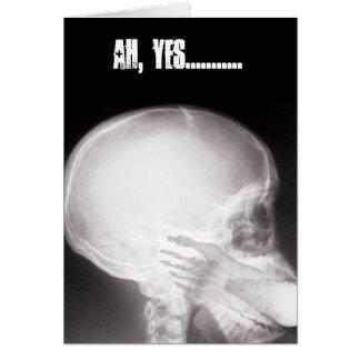 Carte Pied dans le rayon X de bouche