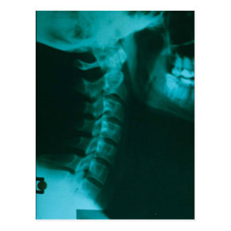 Carte Postale Alignement spinal