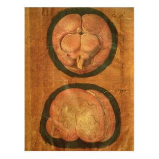 Carte Postale Dessin anatomique de l'esprit humain