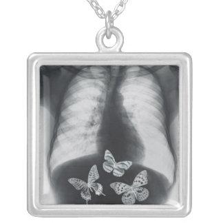 Collier Rayon X des papillons dans l'estomac