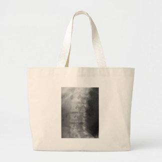 Grand Tote Bag syndrome de chien de scottie