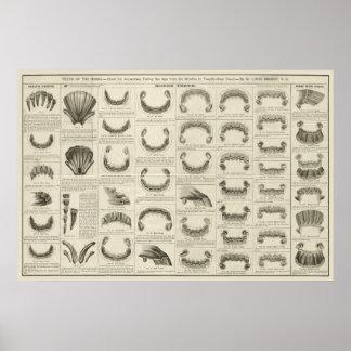 Poster Âge de cheval par l'affiche d'anatomie de
