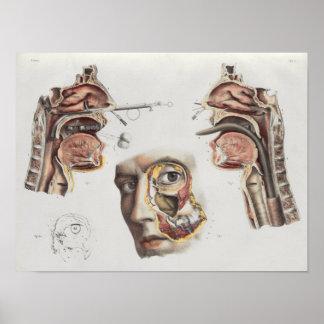 Poster Copie vintage d'anatomie de technique médicale de