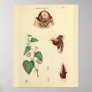 Poster Copie vintage d'art d'anatomie d'utérus de foetus