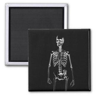 Rayon X squelettique magnet de 2 pouces