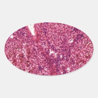 Sticker Ovale Cellules de foie humaines avec le cancer sous le