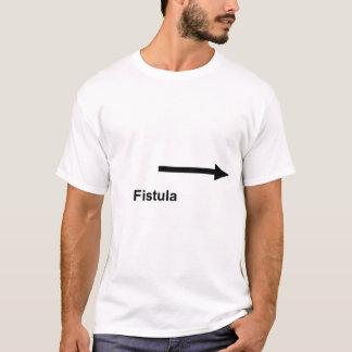 T-shirt Fistule laissée