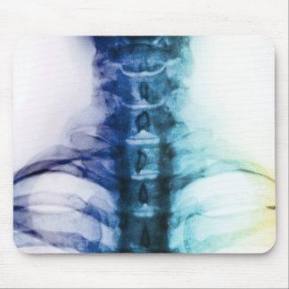 Tapis De Souris Art cervical de rayon X de Digitals
